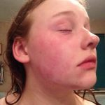 Catherine B - Eczema on face (before)